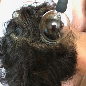 吸灸で毛髪部の吸い玉治療